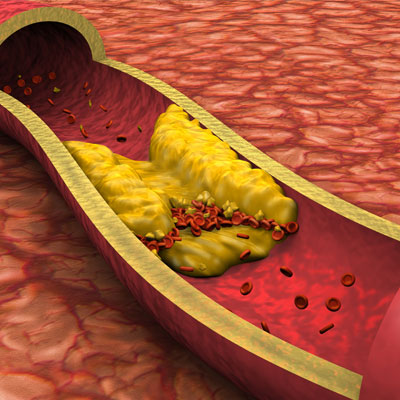 Effects of Growth Hormone on Cholesterol Levels