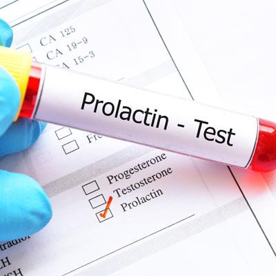 Prolactin Hormone Test