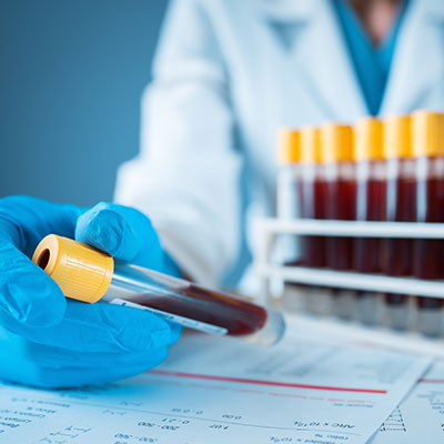 Blood Test for Growth Hormone Deficiency